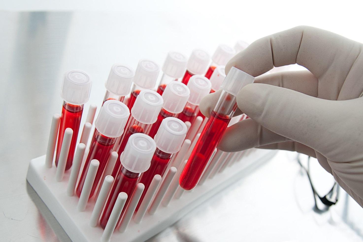 на фото зображений набір пробірок для крові для аналізу