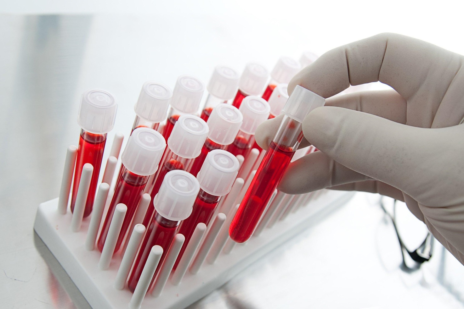 на фото изображен набор пробирок для крови для анализа